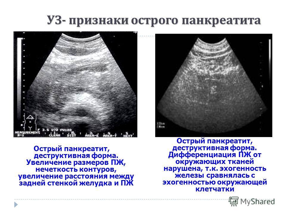 Острый панкреатит, деструктивная форма. Увеличение размеров ПЖ, нечеткость контуров, увеличение расстояния между задней стенкой желудка и ПЖ Острый панкреатит, деструктивная форма. Дифференциация ПЖ от окружающих тканей нарушена, т.к. эхогенность жел