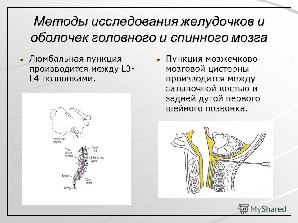Методы исследования желудочков и оболочек головного и спинного мозга Люмбальная пункция производится между L3- L4 позвонками. Пункция мозжечково- мозговой цистерны производится между затылочной костью и задней дугой первого шейного позвонка.