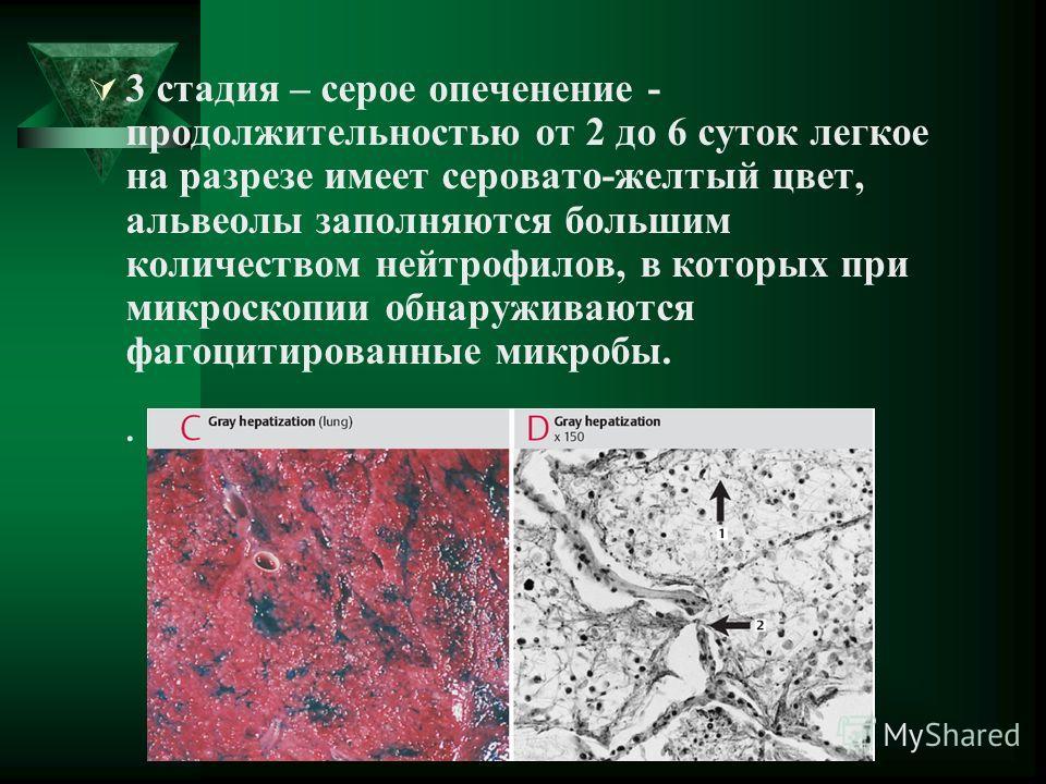 3 стадия – серое опеченение - продолжительностью от 2 до 6 суток легкое на разрезе имеет серовато-желтый цвет, альвеолы заполняются большим количеством нейтрофилов, в которых при микроскопии обнаруживаются фагоцитированные микробы..