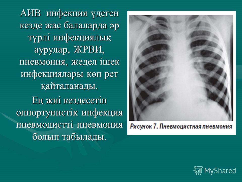 АИВ инфекция үдеген кезде жас балаларда әр түрлі инфекциялық аурулар, ЖРВИ, пневмония, жедел ішек инфекция лары көп рет қайталанады. Ең жиі кездесетін оппортунистік инфекция пневмоцистті пневмония болып табылады.