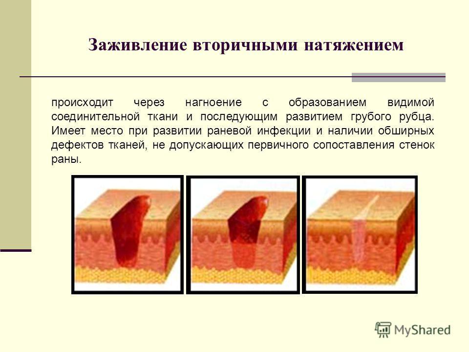 Заживление вторичными натяжением происходит через нагноение с образованием видимой соединительной ткани и последующим развитием грубого рубца. Имеет место при развитии раневой инфекции и наличии обширных дефектов тканей, не допускающих первичного соп