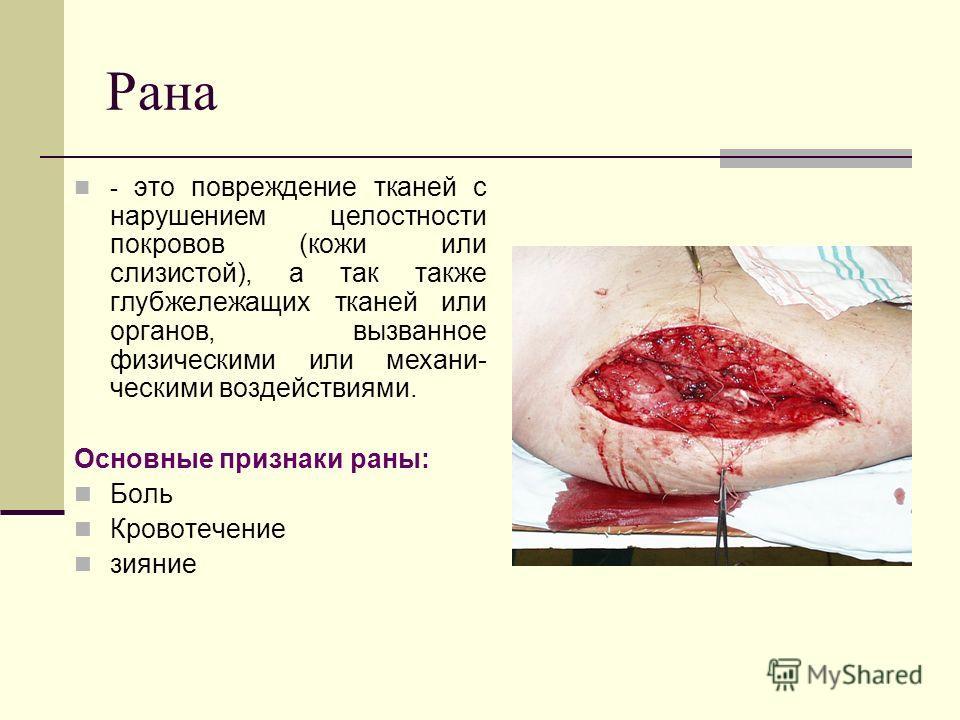 Рана - это повреждение тканей с нарушением целостности покровов (кожи или слизистой), а так также глубжележащих тканей или органов, вызванное физическими или механическими воздействиями. Основные признаки раны: Боль Кровотечение зияние
