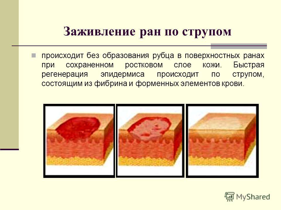 Заживление ран по струпом происходит без образования рубца в поверхностных ранах при сохраненном ростковом слое кожи. Быстрая регенерация эпидермиса происходит по струпом, состоящим из фибрина и форменных элементов крови.