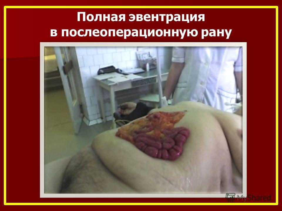 Полная эвентрация в послеоперационную рану