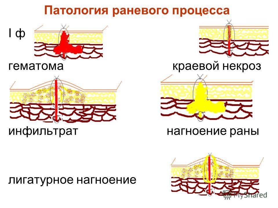 Патология раневого процесса I ф гематома краевой некроз инфильтрат нагноение раны лигатурное нагноение