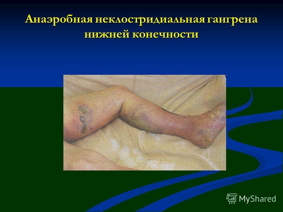 Анаэробная неклостридиальная гангрена нижней конечности