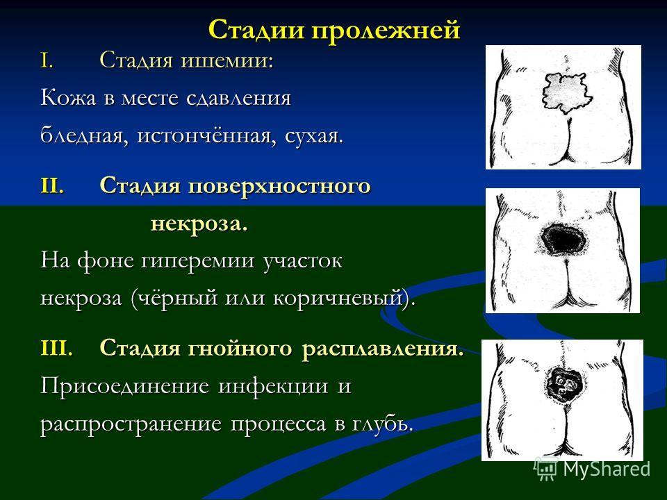 Стадии пролежней I. Стадия ишемии: Кожа в месте сдавления бледная, истончённая, сухая. II. Стадия поверхностного некроза. некроза. На фоне гиперемии участок некроза (чёрный или коричневый). III. Стадия гнойного расплавления. Присоединение инфекции и