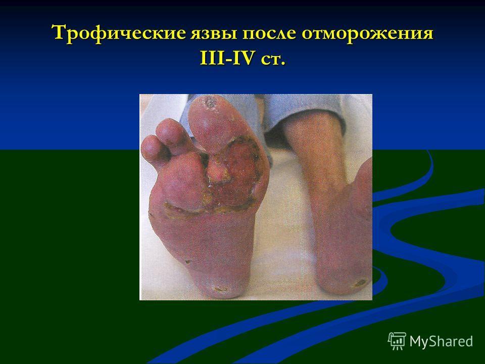Трофические язвы после отморожения III-IV ст.