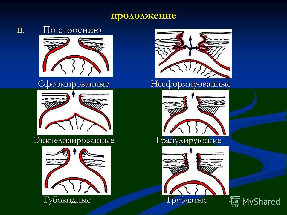 продолжение II. По строению Сформированные Несформированные Сформированные Несформированные Эпителизированные Гранулирующие Эпителизированные Гранулирующие Губовидные Трубчатые Губовидные Трубчатые