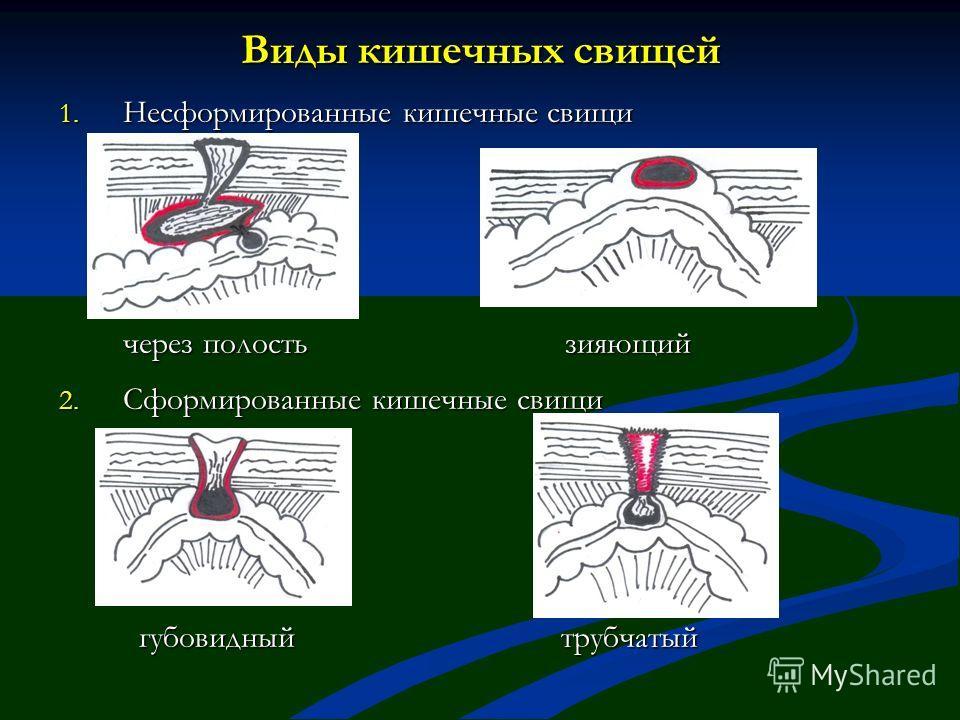 Виды кишечных свищей 1. Несформированные кишечные свищи через полость зияющий через полость зияющий 2. Сформированные кишечные свищи губовидный трубчатый губовидный трубчатый