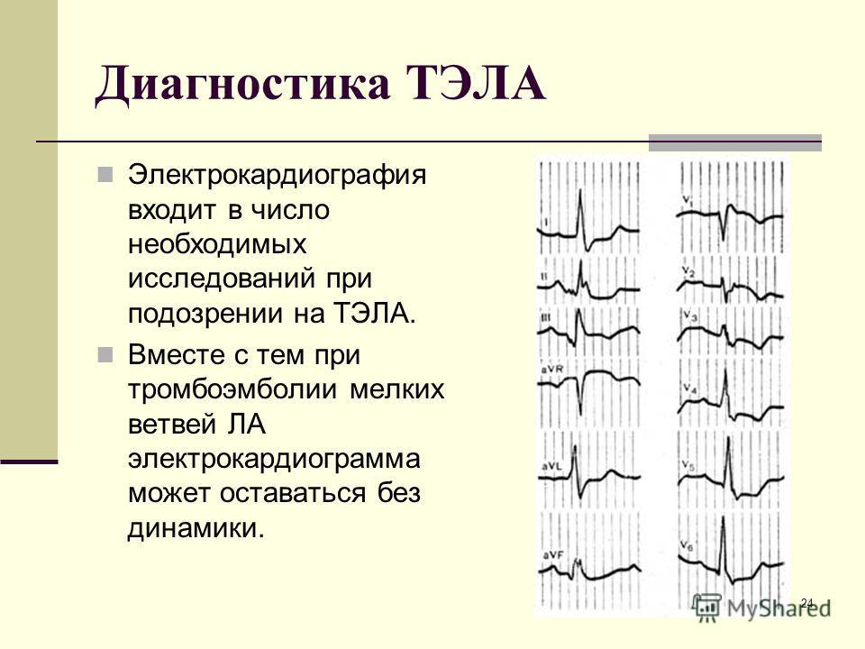 Диагностика ТЭЛА Электрокардиография входит в число необходимых исследований при подозрении на ТЭЛА. Вместе с тем при тромбоэмболии мелких ветвей ЛА электрокардиограмма может оставаться без динамики. 24