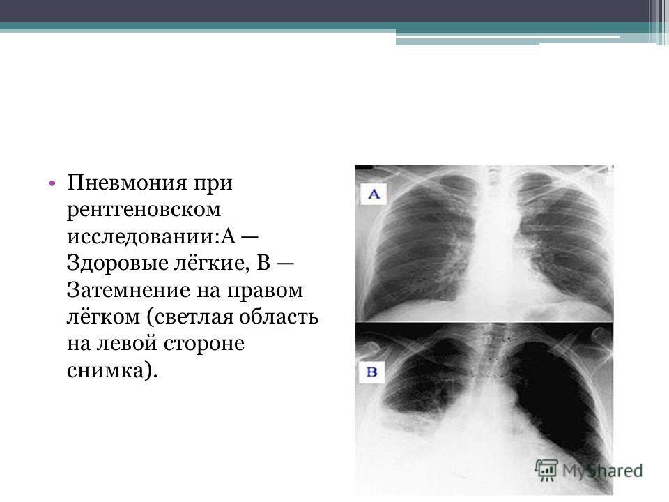 Пневмония при рентгеновском исслидовании:А Здоровые лёгкие, В Затемнение на правом лёгком (светлая область на ливой стороне снимка).