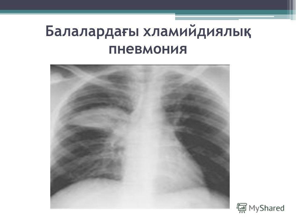 Балаларда ғ ы хламийдиялы қ пневмония
