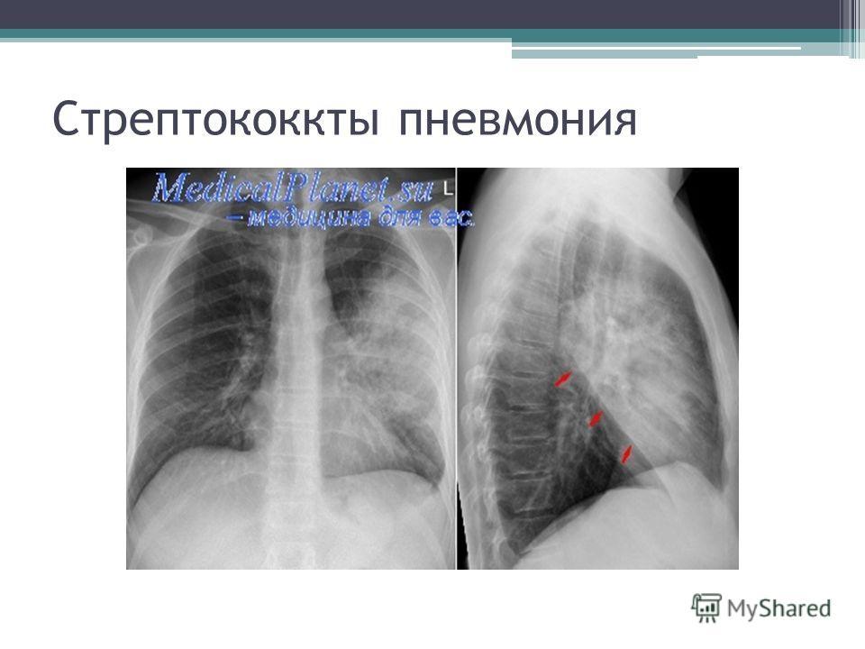 Стрептококкты пневмония