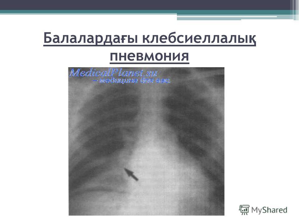 Балаларда ғ ы клибсиеллалы қ пневмония