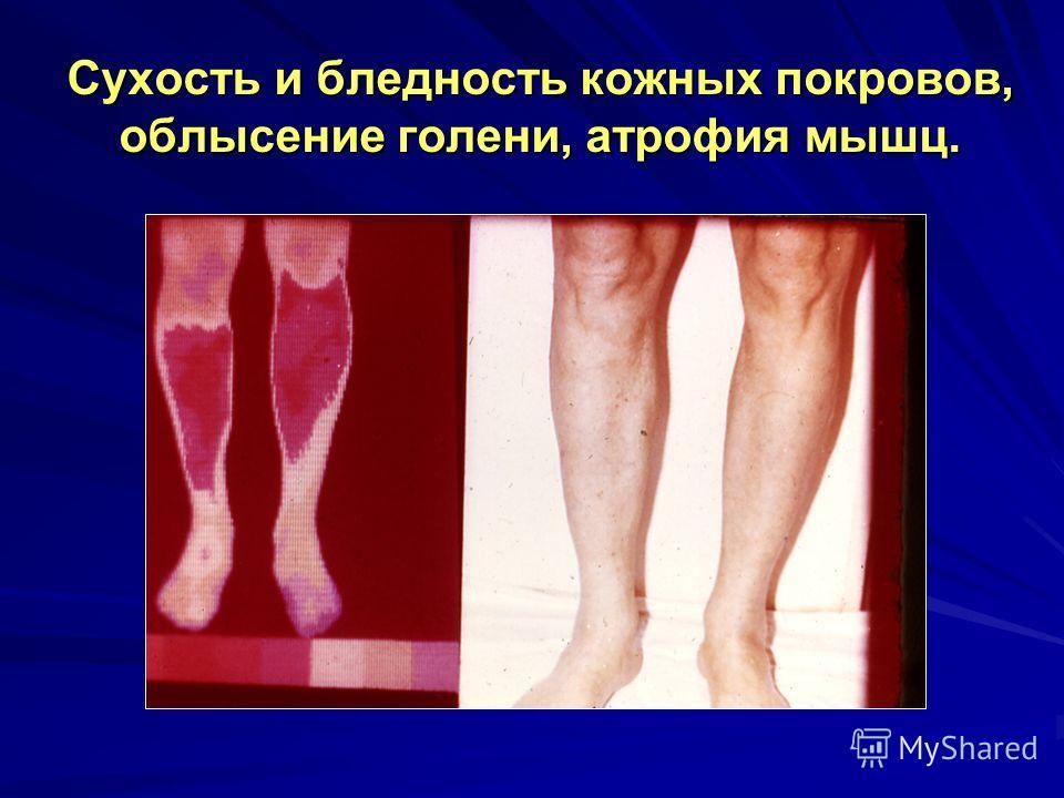 Сухость и бледность кожных покровов, облысение голени, атрофия мышц.
