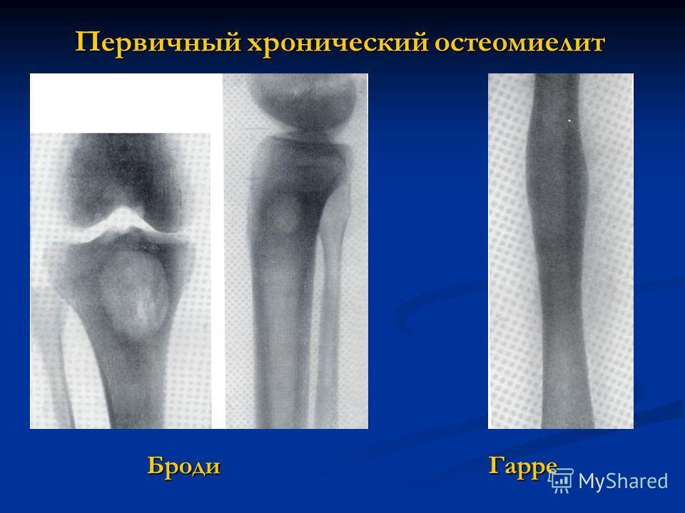 Первичный хронический остеомиелит Броди Гарре Броди Гарре