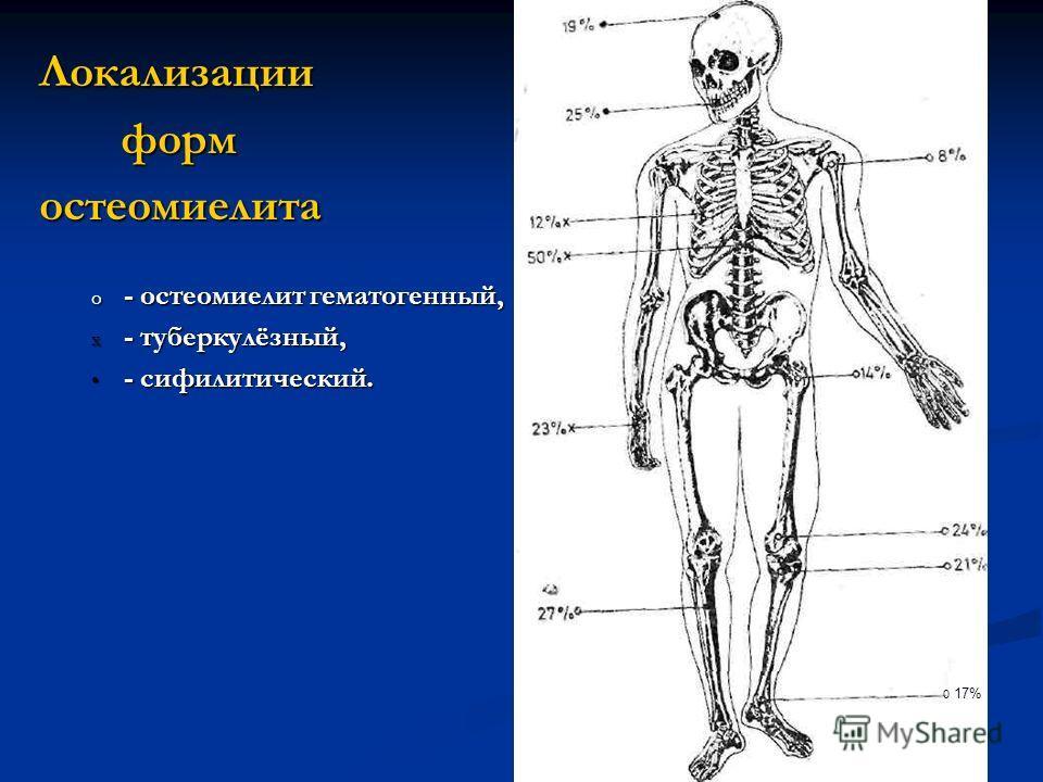 Локализации форм форм остеомиелита o - остеомиелит гематогенный, x - туберкулёзный, - сифилитический. - сифилитический. 0 17%