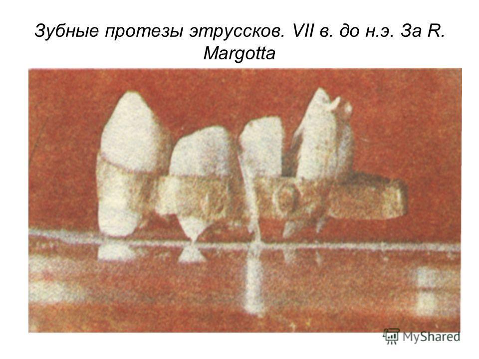 Зубные протезы этрусков. VII в. до н.э. За R. Margotta