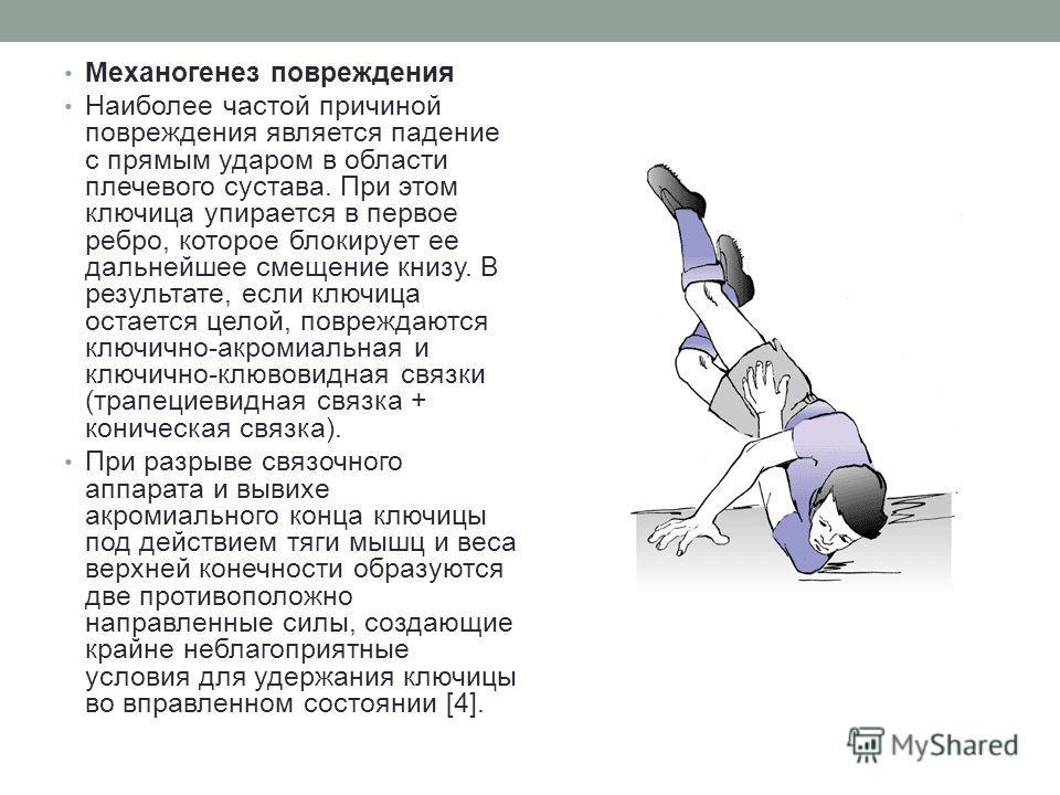 Механогенез повреждения Наиболее частой причиной повреждения является падение с прямым ударом в области плечевого сустава. При этом ключица упирается в первое ребро, которое блокирует ее дальнейшее смещение книзу. В результате, если ключица остается