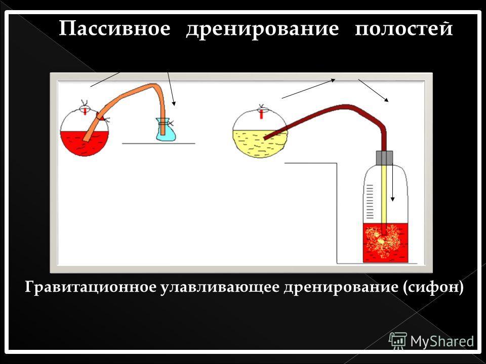 Гравитационное улавливающее дренирование (сифон)