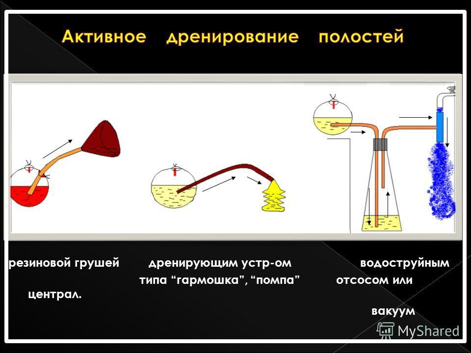 резиновой грушей дренирующим устр-ом водоструйным типа гармошка, помпа отсосом или централ. вакуум