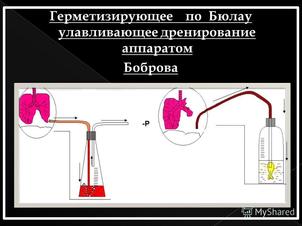 Герметизирующее по Бюлау улавливающее дренирование аппаратом Боброва -Р