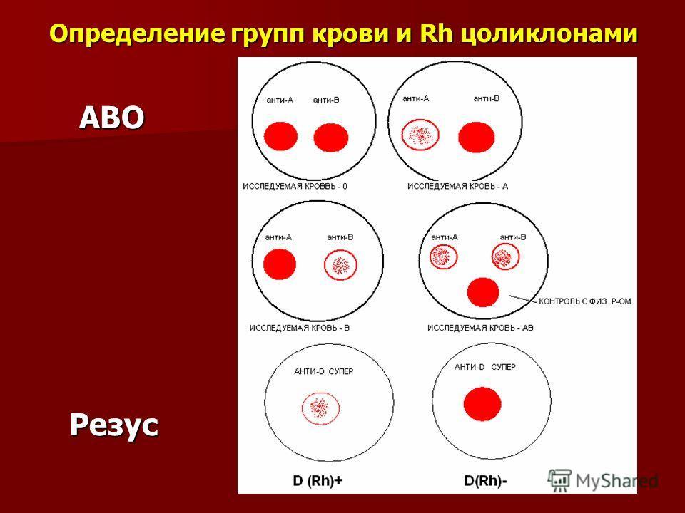 Определение групп крови и Rh цоликлонами АВО АВО Резус Резус