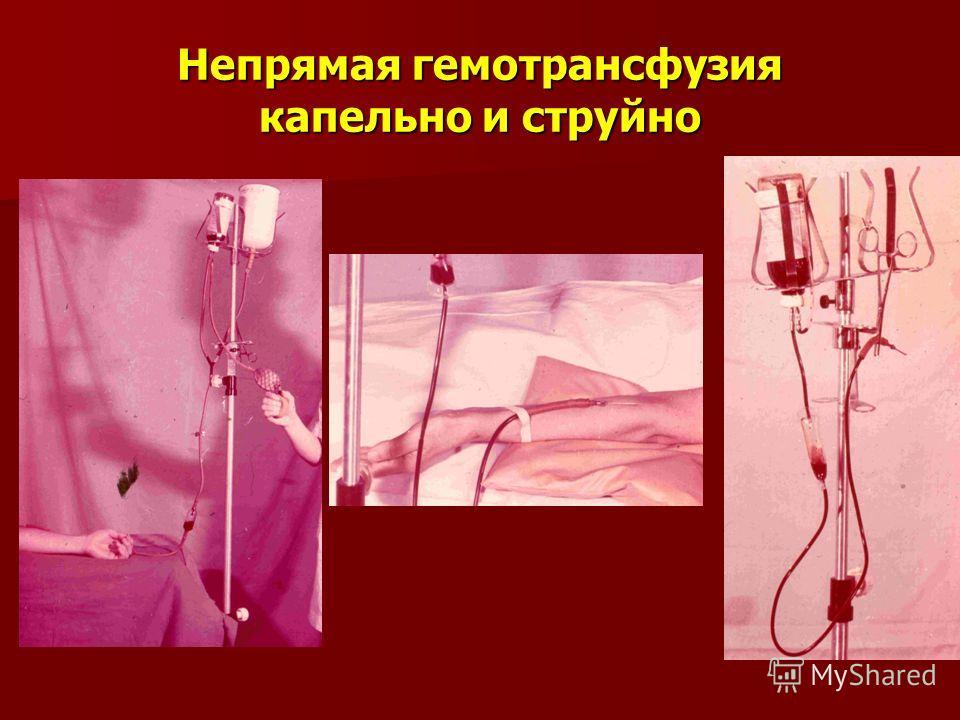 Непрямая гемотрансфузия капельно и струйно