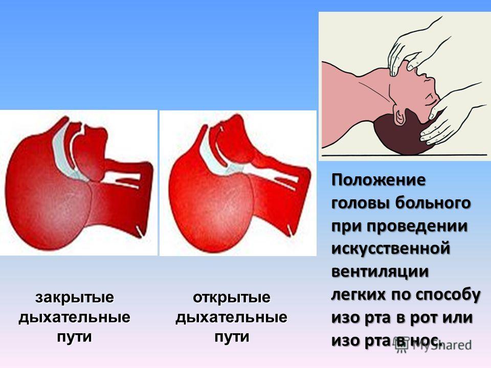 закрытые дыхательные пути открытые Положение головы больного при проведении искусственной вентиляции легких по способу изо рта в рот или изо рта в нос.