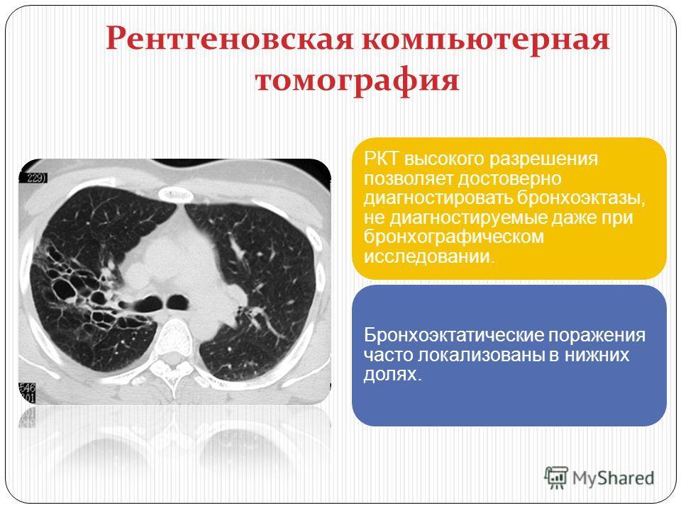 Рентгеновская компьютерная томография РКТ высокого разрешения позволяет достоверно диагностировать бронхоэктазы, не диагностируемые даже при бронхографическом исследовании. Бронхоэктатические поражения часто локализованы в нижних долях.