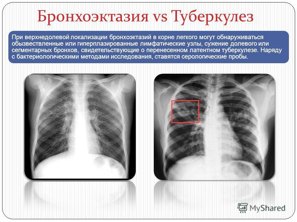Бронхоэктазия vs Туберкулез При верхнедолевой локализации бронхоэктазий в корне легкого могут обнаруживаться обызвествленные или гиперплазированные лимфатические узлы, сужение долевого или сегментарных бронхов, свидетельствующие о перенесенном латент