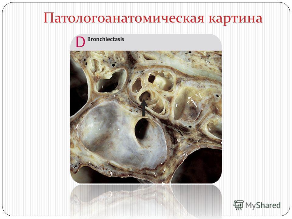 Патологоанатомическая картина