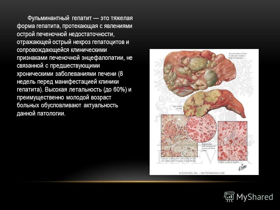 Фульминантный гепатит это тяжелая форма гепатита, протекающая с явлениями острой печеночной недостаточности, отражающей острый некроз гепатоцитов и сопровождающейся клиническими признаками печеночной энцефалопатии, не связанной с предшествующими хрон