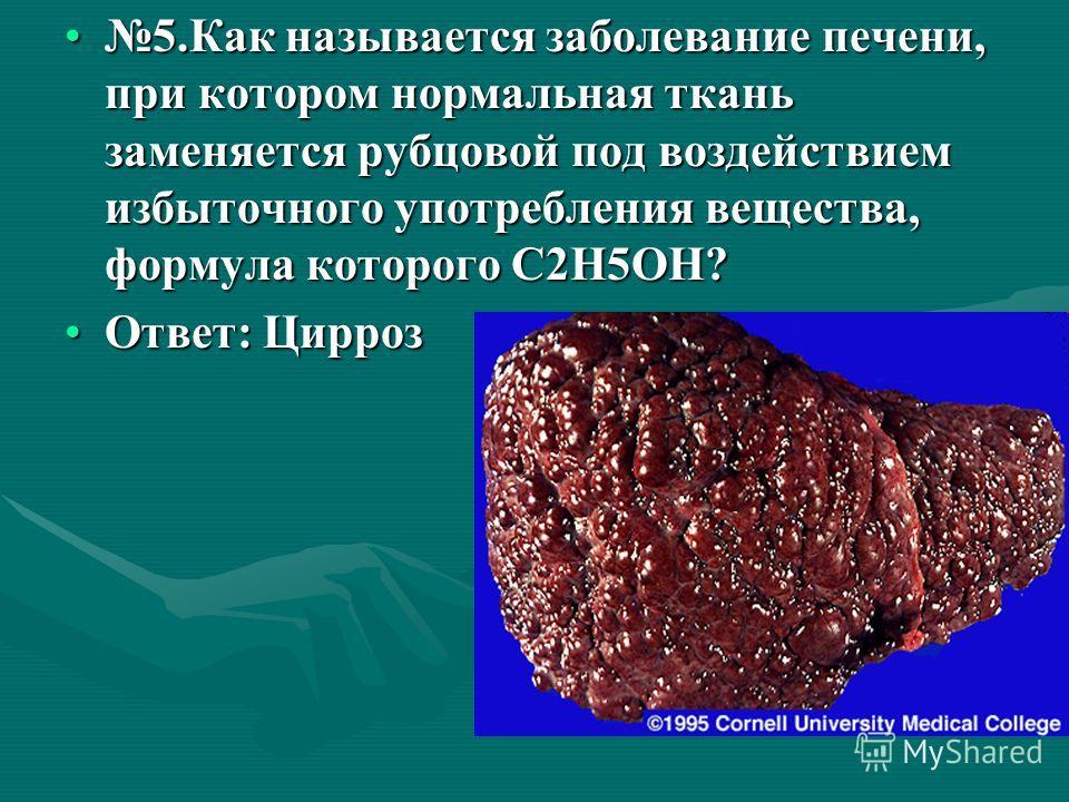 5. Как называется заболевание печени, при котором нормальная ткань заменяется рубцовой под воздействием избыточного употребления вещества, формула которого С2Н5ОН?5. Как называется заболевание печени, при котором нормальная ткань заменяется рубцовой