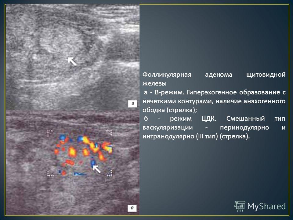 Фолликулярная аденома щитовидной железы а - В - режим. Гиперэхогенное образование с нечеткими контурами, наличие анэхогенного ободка ( стрелка ); б - режим ЦДК. Смешанный тип васкуляризации - перинодулярно и интранодулярно (III тип ) ( стрелка ).