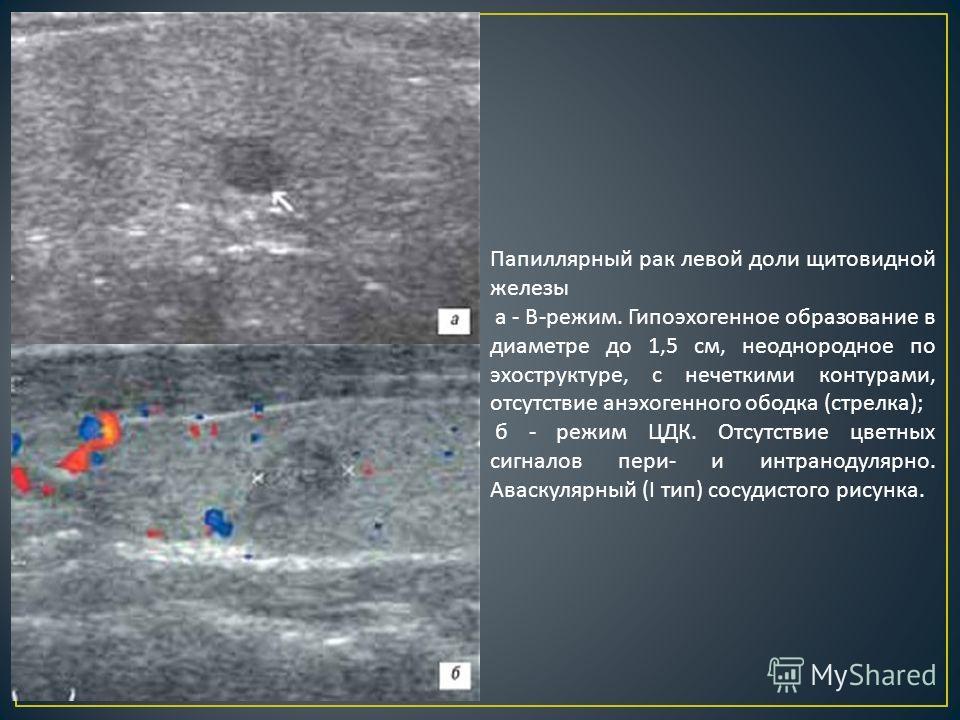 Папиллярный рак левой доли щитовидной железы а - В - режим. Гипоэхогенное образование в диаметре до 1,5 см, неоднородное по экоструктуре, с нечеткими контурами, отсутствие анэхогенного ободка ( стрелка ); б - режим ЦДК. Отсутствие цветных сигналов пе