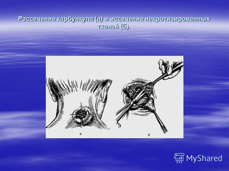 Рассечение карбункула (а) и иссечение некротизированных тканей (б).