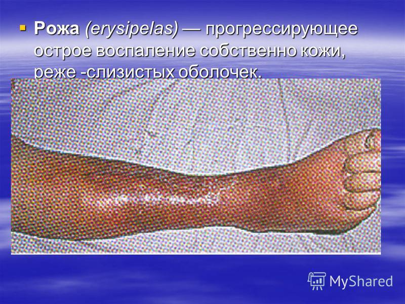Рожа (еrysipelas) прогрессирующее острое воспаление собственно кожи, реже -слизистых оболочек. Рожа (еrysipelas) прогрессирующее острое воспаление собственно кожи, реже -слизистых оболочек.