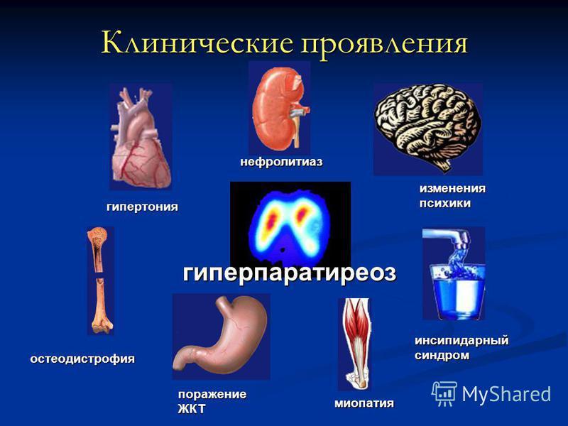 Клинические проявления гиперпаратиреоз миопатия остеодистрофия изменения психики инсипидарный синдром нефролитиаз гипертония поражение ЖКТ