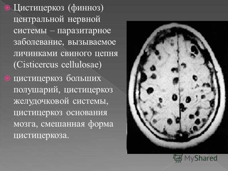 Цистицеркоз (финноз) центральной нервной системы – паразитарное заболевание, вызываемое личинками свиного цепня (Cisticercus cellulosae) цистицеркоз больших полушарий, цистицеркоз желудочковой системы, цистицеркоз основания мозга, смешанная форма цис