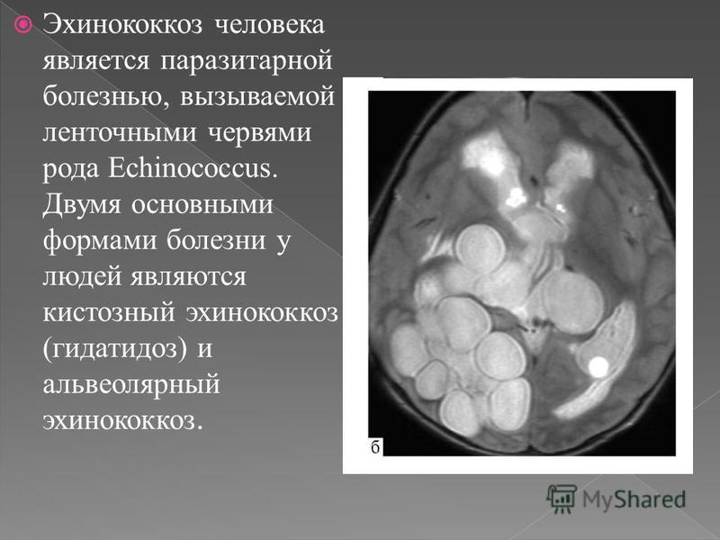 Эхинококкоз человека является паразитарной болезнью, вызываемой ленточными червями рода Echinococcus. Двумя основными формами болезни у людей являются кистозный эхинококкоз (гидатидоз) и альвеолярный эхинококкоз.