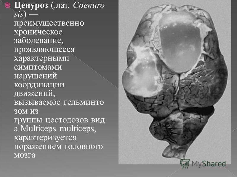 Ценуроз (.лат. Coenuro sis) преимущественно хроническое заболевание, проявляющееся характерными симптомами нарушений координации движений, вызываемое гельминтов дом из группы цестодозов вид а Multiceps multiceps, характеризуется поражением головного
