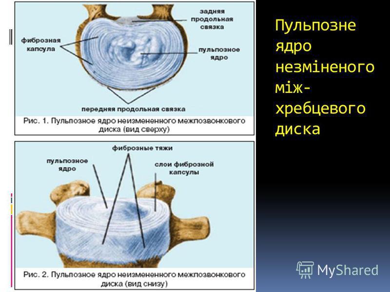 Пульпозне ядро незміненого між- хребцевого диска