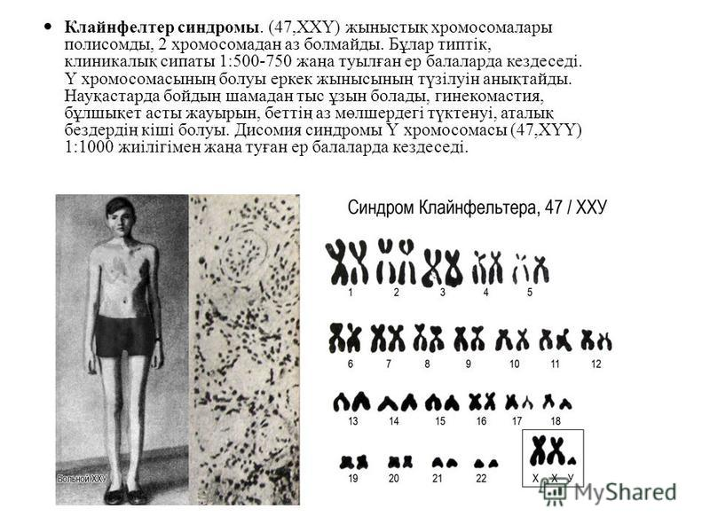 Клайнфелтер синдромы. (47,ХХҮ) жыныстық хромосома лары полисомды, 2 хромосомадан аз болмайды. Бұлар типтік, клиникалық сипоты 1:500-750 жаңа туылған ер балаларда кездеседі. Ү хромосомасының болуы еркек жынысының түзілуін анықтайды. Науқастарда бойдың