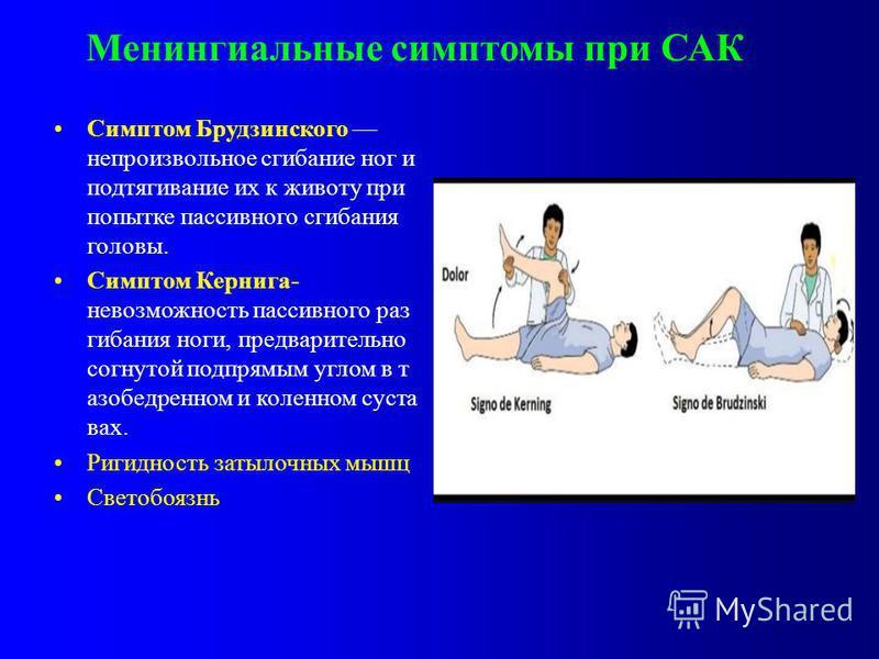 Менингиальные симптомы при САК Симптом Брудзинского непроизвольное сгибание ног и подтягивание их к животу при попытке пассивного сгибания головы. Симптом Кернига- невозможность пассивного разгибания ноги, предварительно согнутой подпрямым углом в та