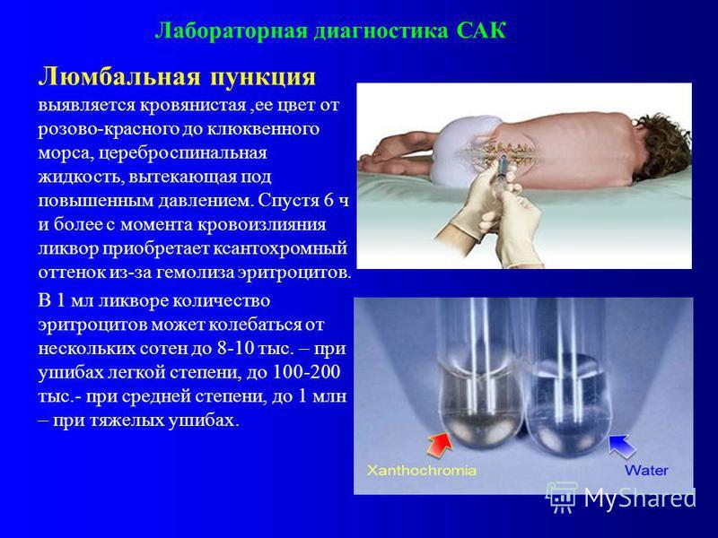 Лихорадка цереброспинальная фото