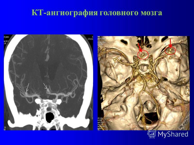 КТ-ангиография головного мозга