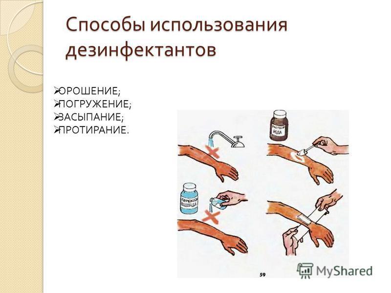 Способы использования дезинфектантов ОРОШЕНИЕ; ПОГРУЖЕНИЕ; ЗАСЫПАНИЕ; ПРОТИРАНИЕ.