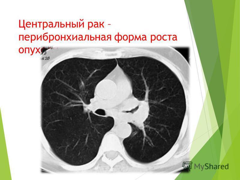 Центральный рак – перибронхиальная форма роста опухоли.